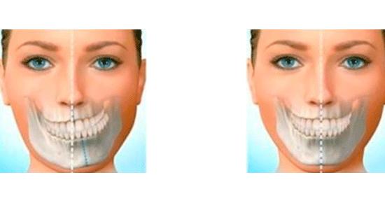 malformacion-mandibular