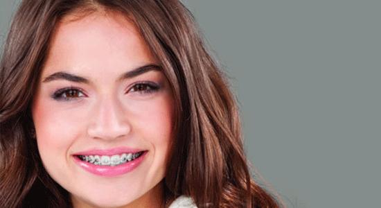ortodoncia y estetica facial