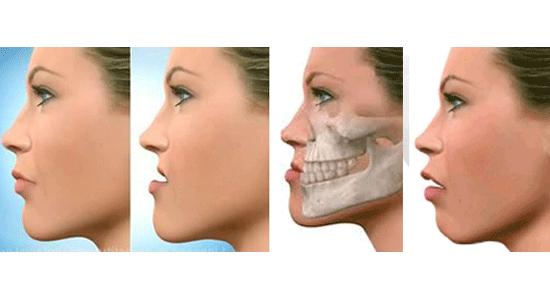 prognatismo-mandibular-ortognatica
