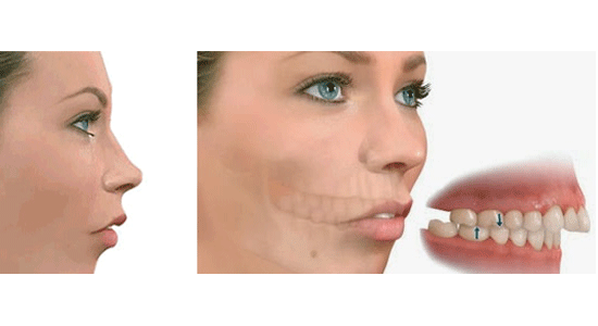 retrognatismo-mandibular