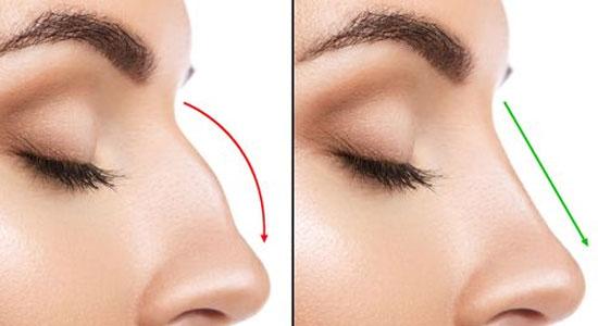 rinoplastia estetica facial