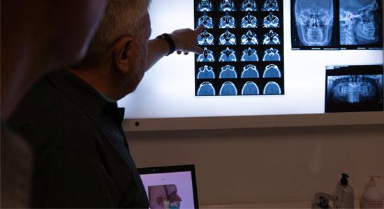 analisis tomografia maxilar