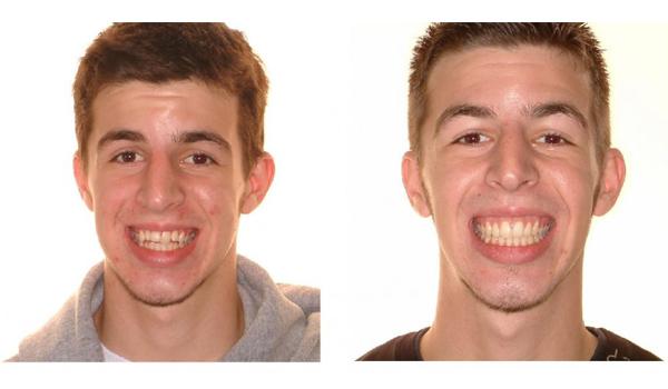 estetica facial con mordida abierta