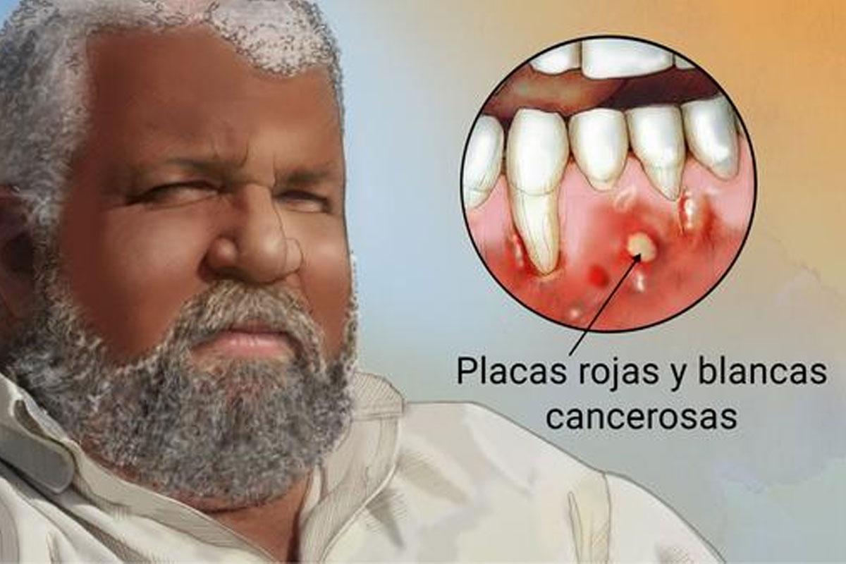 cancer-oral-argentina